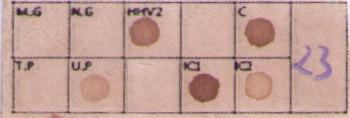 Membrana-Venereas-5-STD-350x118