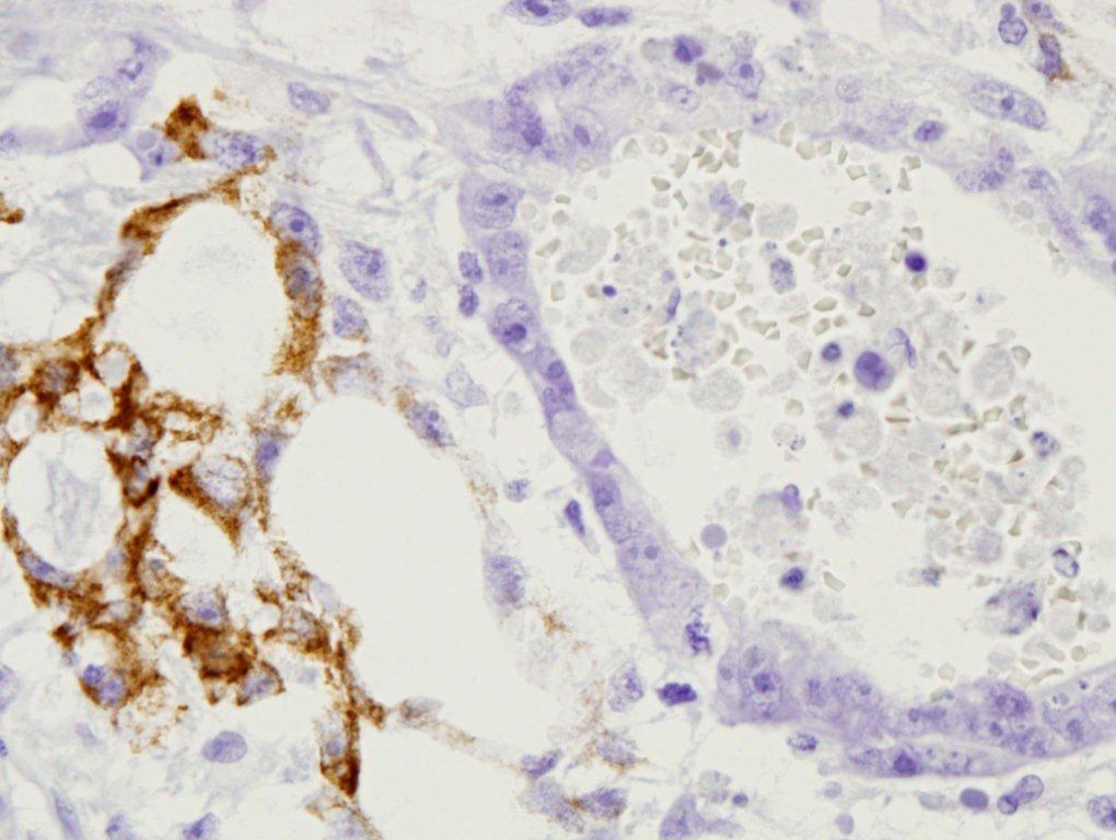 Carcinoma embrionario del testículo.