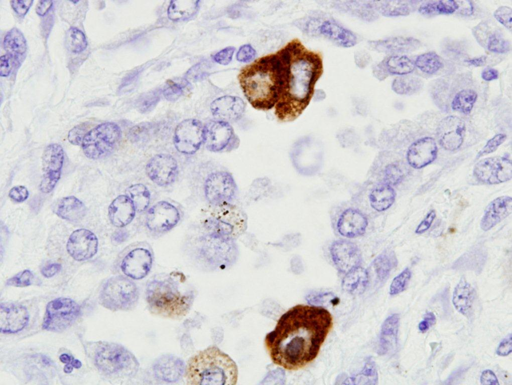 Pneumonitis intersticial en paciente inmunodeprimido.