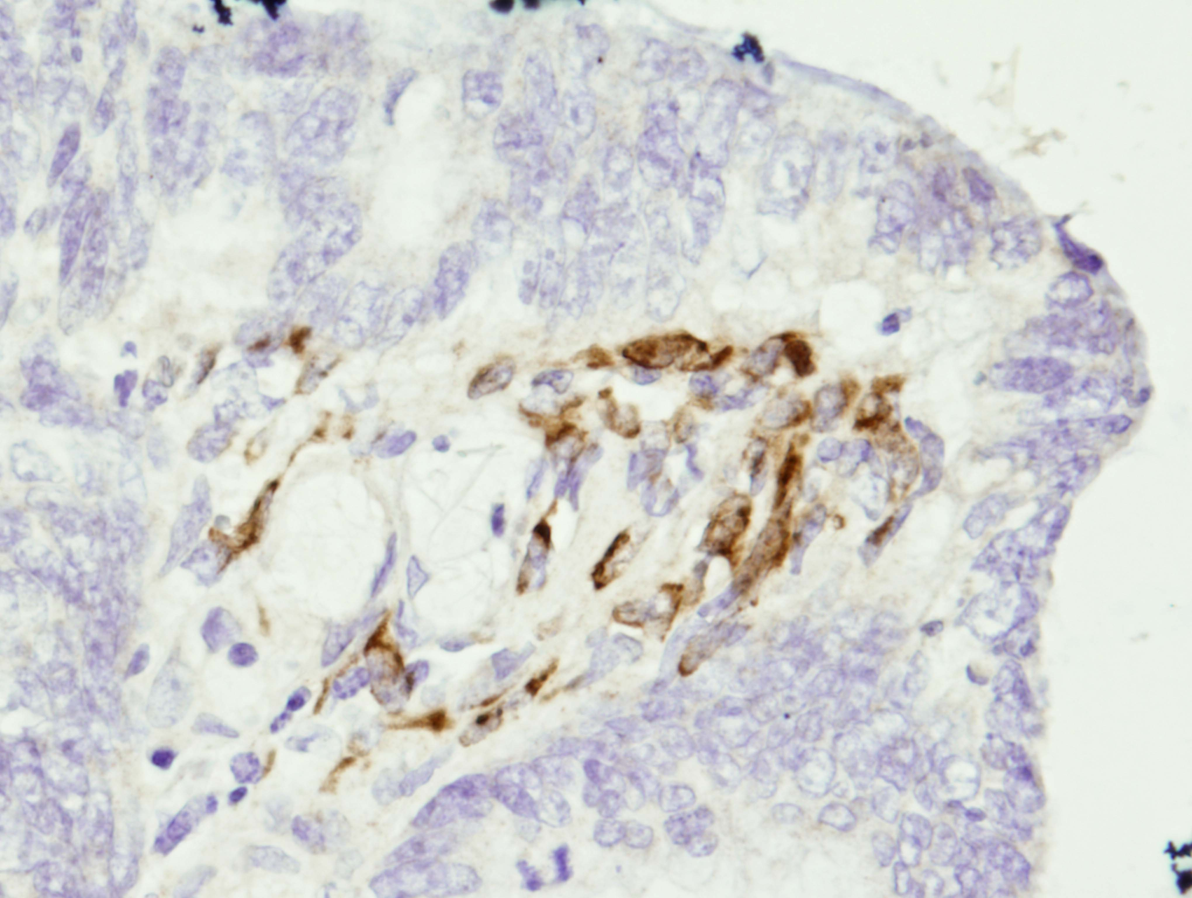 MMP 3 Células estromales productoras en un adenocarcinoma de colon