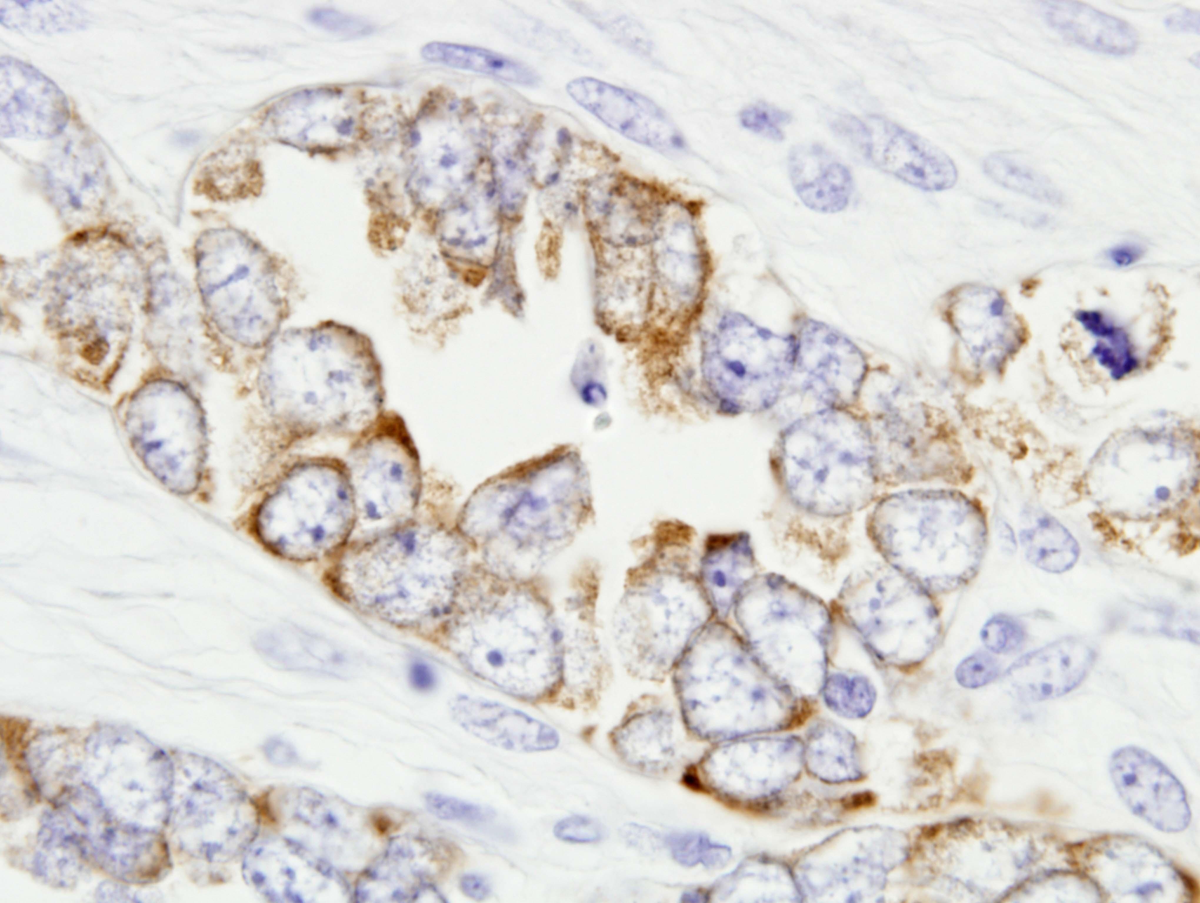 MMP 7 Carcinoma ductal infiltrante de mama, triple negativo, basal, CELL LIKE Las celulas tumorales malignas producen MMP 7