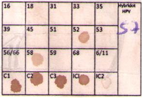 Membrana-HPV